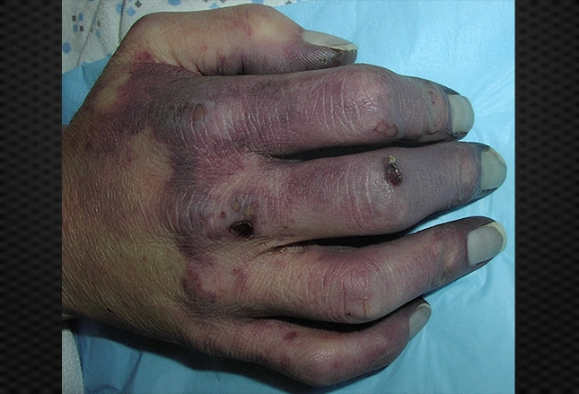 Diagnosing Disorders of the Hand (That Aren't Arthritis)