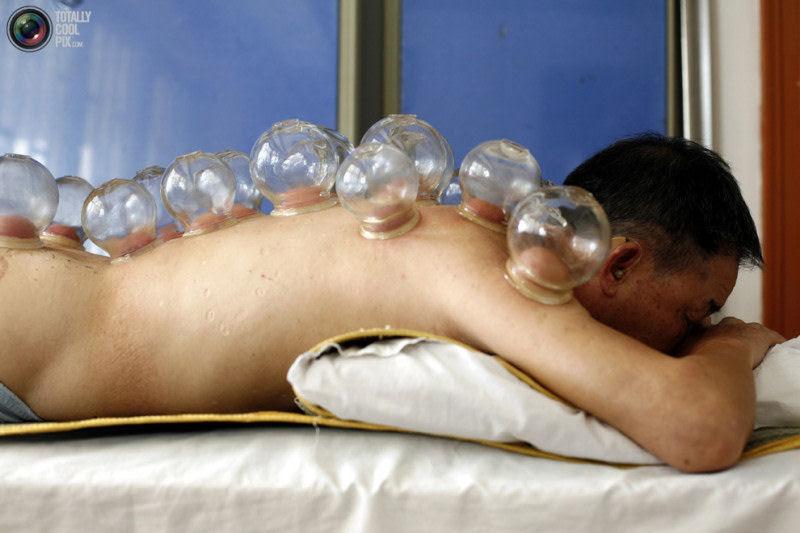 Metodos de cura muito bizarros 11