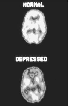 Depression and depressive disorders - children, causes ...