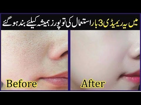 How To Get Rid Of Open Pores Naturally | Large Pores Home Remedy | Skin