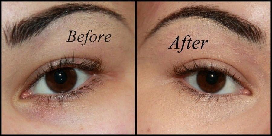 How To Fix Dark Under Eye Circles