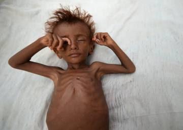 El hambre se cierne en Yemen
