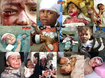Iraq War Victim