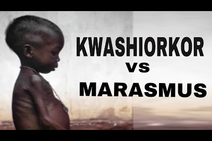 Marasmus Kwashiorkor Images