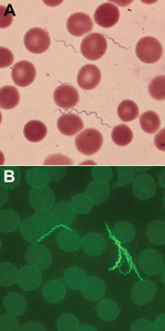 Thumbnail of A) Spirochetes in blood smear of a 55-year-old man with tickborne relapsing fever, Bitterroot Valley, Montana, USA (Giemsa stain). Erythrocyte diameters are ≈6–8 µm. B) Spirochetes in blood smear of the patient visualized by indirect immunofluorescent antibody staining with mouse monoclonal antibody H9724 and goat anti-mouse antibody conjugated with fluorescein isothiocyanate (original magnification ×1,000).
