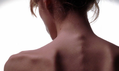 Anorexic back