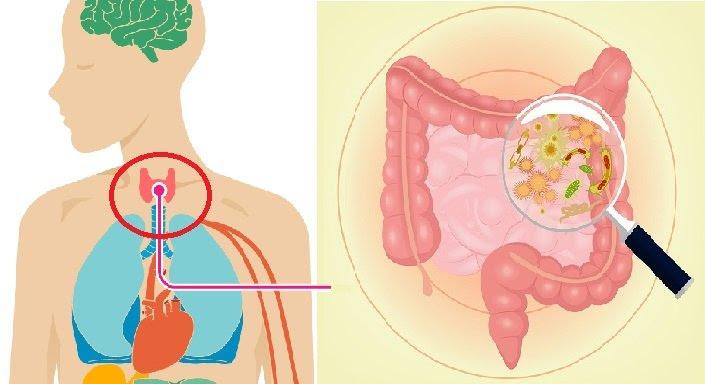 6 factores principales que causan hipotiroidismo y que son ignorados