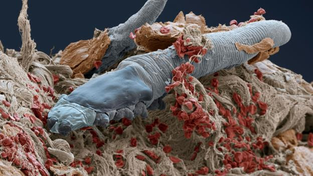 A scanning electron micrograph of Demodex folliculorum (Credit: Eye of Science/SPL)