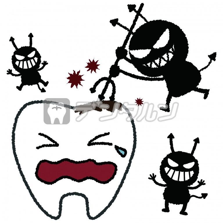 虫歯イラストの無料素材 歯科医院歯医者が利用出来る歯科関連の