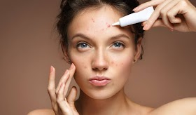 Improve The Texture & Tone Of Acne Marked Skin With Laser Treatment