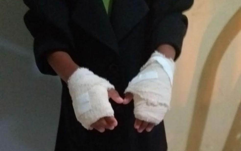 Mulher é presa na BA por queimar mãos de criança com colher quente devido a 'mau comportamento'