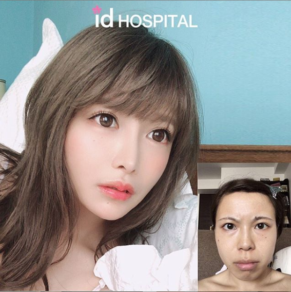 plastic surgery makeover