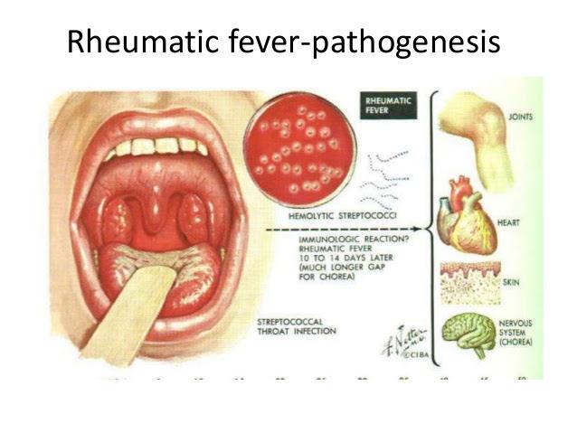 rheumatic fever 3 638