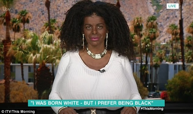 Martina Big has changed her skin colour from white to black with tanning injections and says she wants to have surgery on her nose