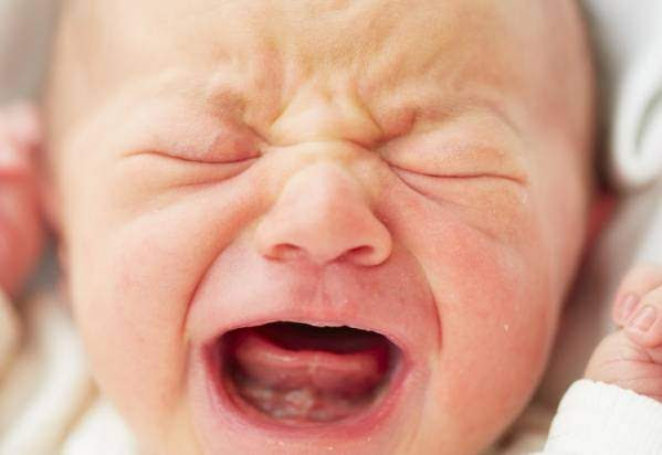 4 Effective Treatments To Cure Mouth Ulcer In Infants