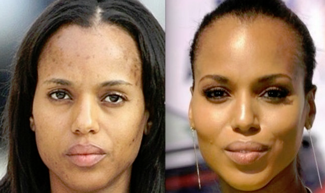How to reduce skin discoloration | Fashionable Beauty