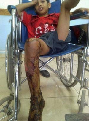 Garoto foi levado ao médico e teve queimaduras  (Foto: Reprodução/Facebook/ Mohammad Mouzahem)