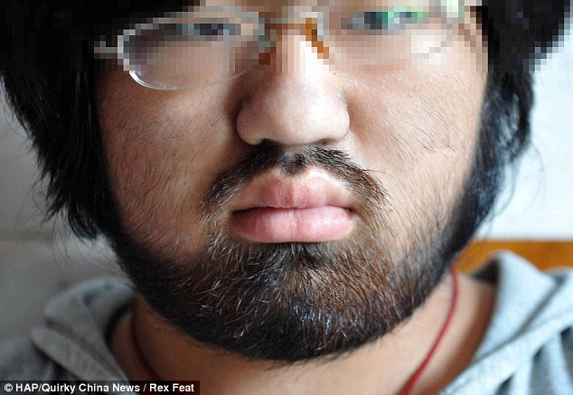 Little girl: Nana, a 16-year-old girl, peers emotionless while showing the result of a rare excessive facial and body hair condition for women called hirsutism