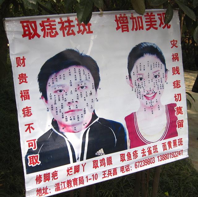 streetside acupuncturist, People's Park, Chengdu