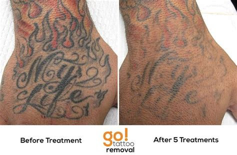 laser tattoo removal treatments weve removed