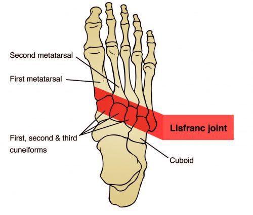 Lisfranc Joint Anatomy Diagram - El Paso Chiropractor