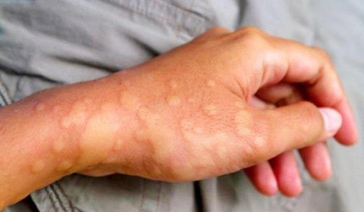 Nổi mề đay khi trời lạnh gây ảnh hưởng nghiêm trọng tới sinh hoạt của người bệnh