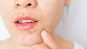 Pimples Naturally