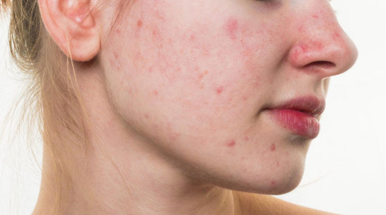 Một loại bệnh về da nữa do stress gây ra