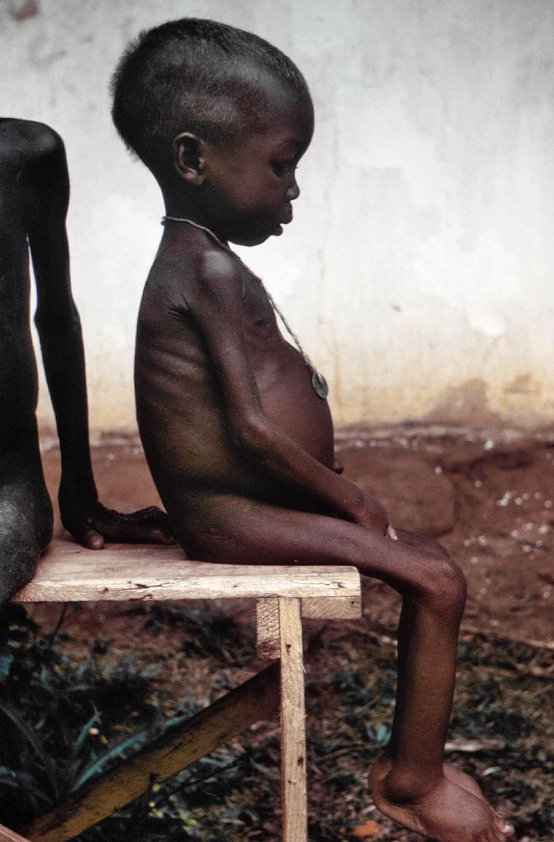 https://upload.wikimedia.org/wikipedia/commons/thumb/4/47/Starved_girl.jpg/800px-Starved_girl.jpg