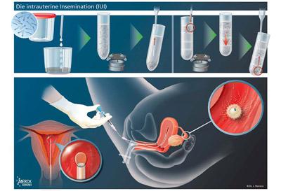 insemination chart