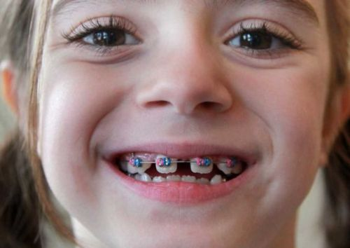 Niềng răng mất bao nhiêu thời gian phụ thuộc vào 4 yếu tố này