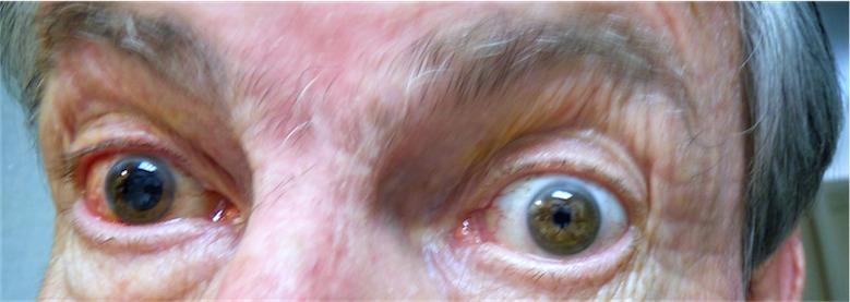Wide Eyed C.jpg