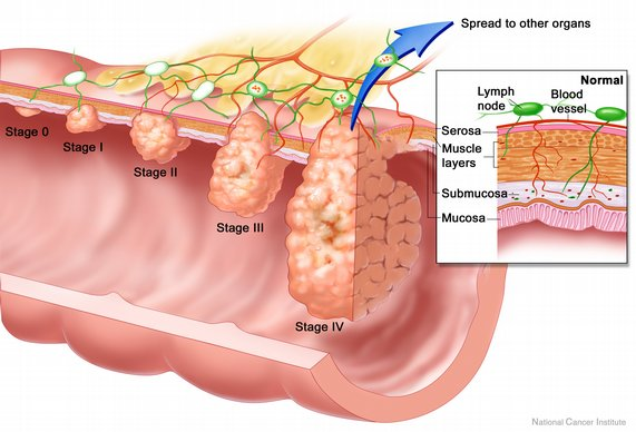 colon-cancer-stages.jpg