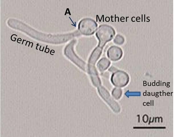 C-albicans Germ tube LAb11D-6b 2012