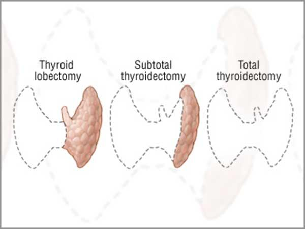 https://www.gvhcol.com/backend/web/uploads/pages/thyroidectomy.jpg