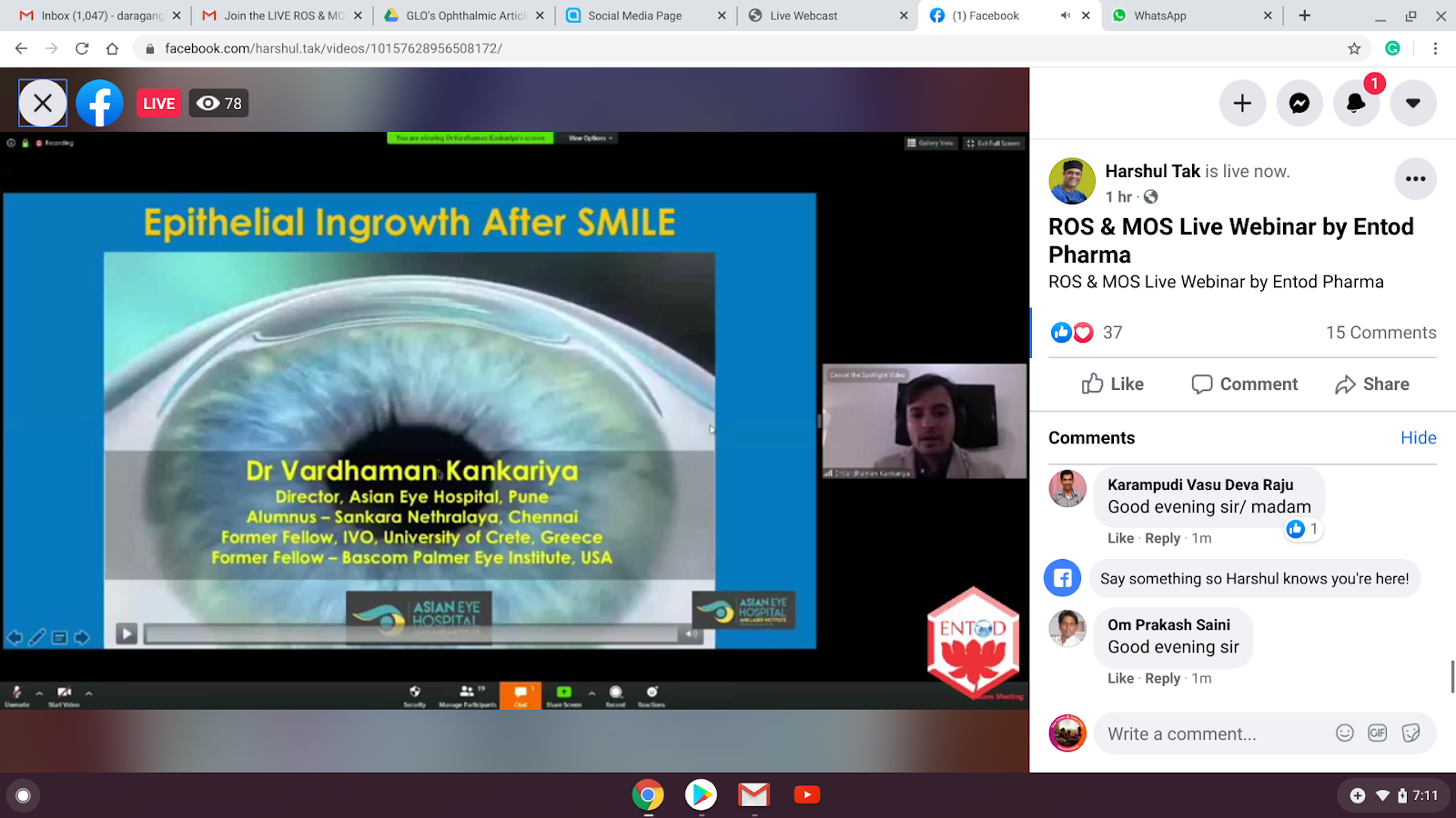 Entod Webinar on Cataracts: Taking the Fear Out of