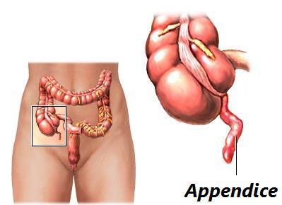 Description: http://fr.questmachine.org/encyclopedie/illustrations/illustrations_articles/appendice1290437236.jpg