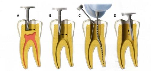 Khi bọc răng sứ có cần phải lấy tủy không? - Nha Khoa Bally 1