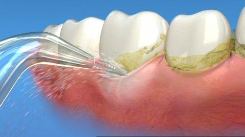 """Lấy cao răng bằng máy siêu âm """"CAM KẾT"""" an toàn, không gây ê buốt"""