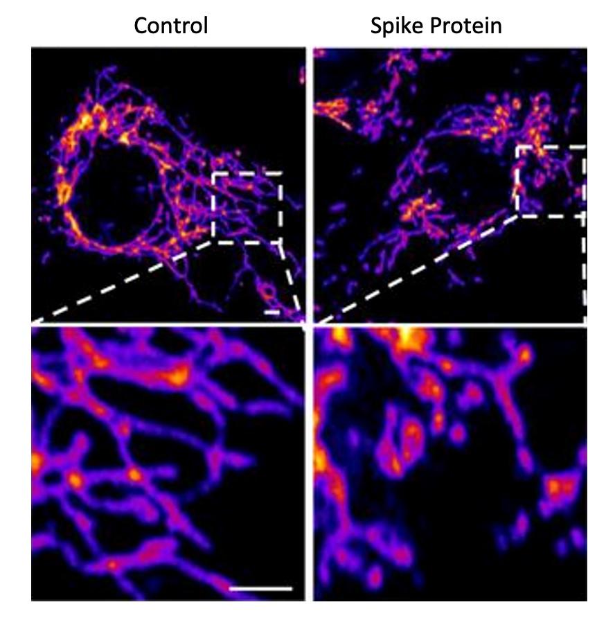 Imagens representativas de células de controle do endotélio vascular (esquerda) e células tratadas com a proteína Spike (direita) mostram que a proteína causa aumento da fragmentação mitocondrial em células vasculares. (Fonte: Instituto Salk/Reprodução)