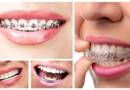 Niềng răng bao nhiêu tiền với mỗi loại mắc cài?