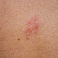 Can Anything Help Shingles? post image
