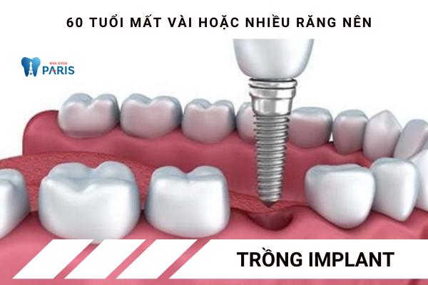 60 tuổi mất răng nên bắc cầu răng hay làm Implant? - Ảnh 2
