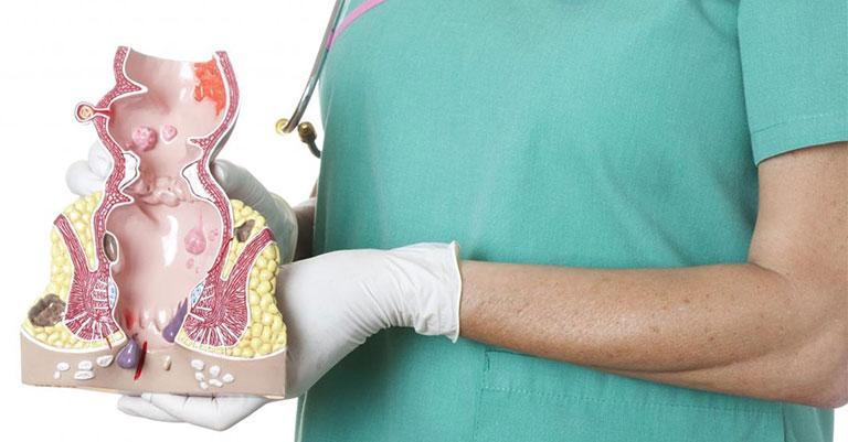 Thuốc tây chữa bệnh trĩ huyết khối