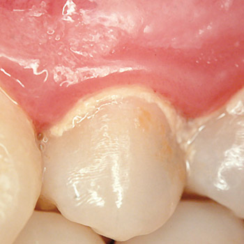 điều trị viêm chân răng