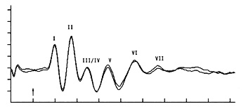 Brain stem auditory evoked response (BAER) in response to clicks (intensity = 90 dB nHL) delivered at a rate of 11.4/sec