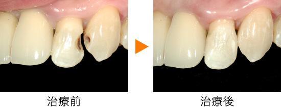 「充填虫歯」の画像検索結果