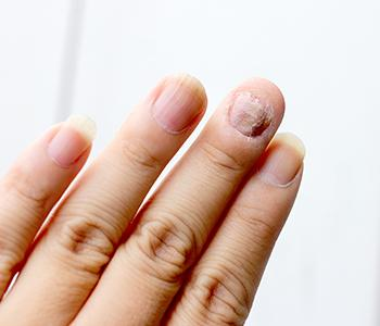 Growth of fungus in nails