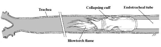 A blowtorch effect may result from a laser impingement and subsequent ignition of the proximal part of the endotracheal tube. Once ignited, the oxygen-rich anesthetic gases passing through the endotracheal tube may support combustion, leading to a blowtorch fire and immediate heat damage to the cuff that then rapidly collapses.