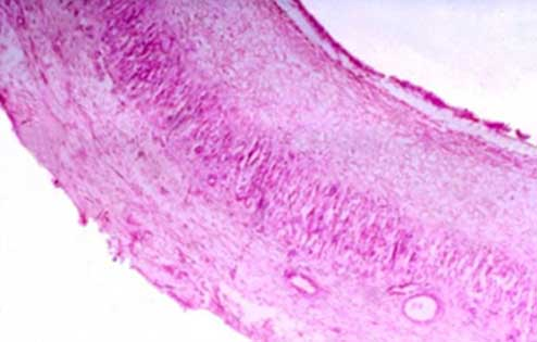 Microphotograph showing the wall of a follicular ovarian cyst on the ovary of a buffalo. The granulosa layer is absent and the theca layer reveals luteinization. H&E 40X.